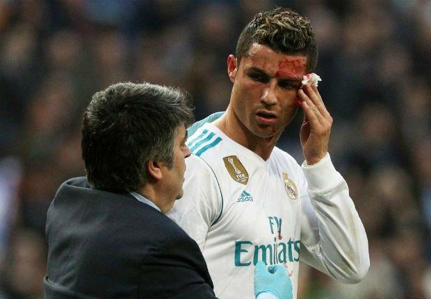 Cristiano Ronaldo checks face injury