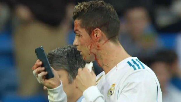 Cristiano Ronaldo hurt against Deportivo