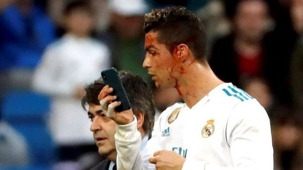 Zidane Explains Why Ronaldo Looked at Phone After Face Injury
