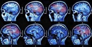 concussions-image_tcm7-152497